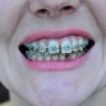 Мой Зубной
